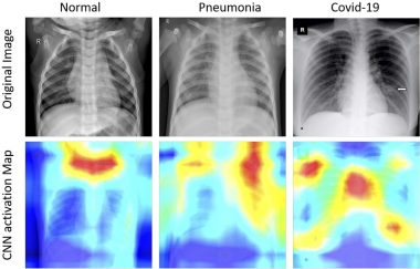 COVID-19 Detection from Chest X-Ray Image using Deep Convolutional Neural Network